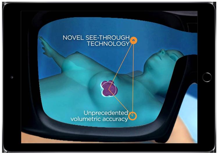 Medsights Tech
